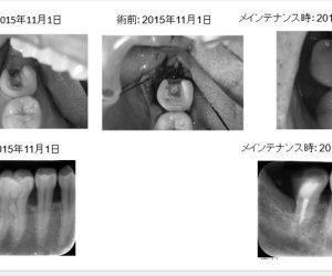 親知らずが食い込み、他院で「抜歯宣告」を受けた症例
