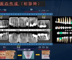 他院で抜歯と言われた歯を保存した症例