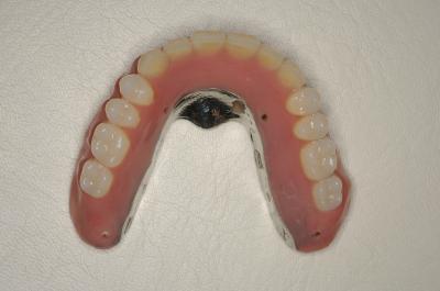 八潮市の歯医者で入れ歯をお探しなら「BiVi歯科クリニック」