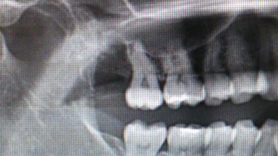 CT撮影完備の歯医者は「BiVi歯科クリニック」