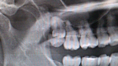 インプラント治療はCT撮影が必要です。
