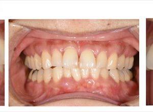 1本の歯も抜かず保存出来ている症例