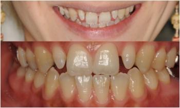 すきっ歯の矯正治療前