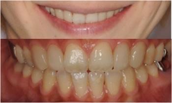 すきっ歯の矯正治療後