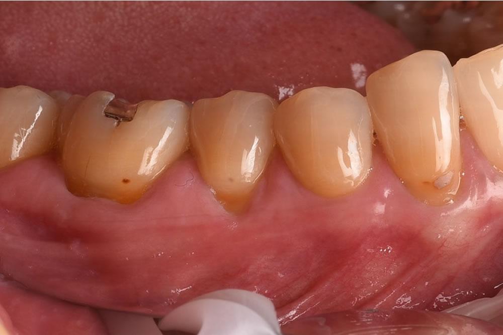 歯茎がしみる方へ実施した根面被覆術の症例
