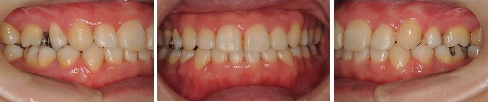 前歯の矯正治療後