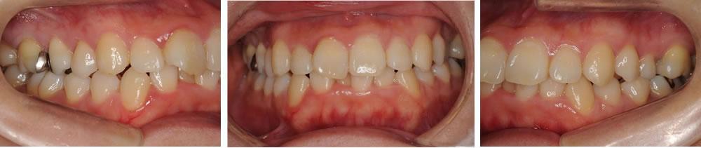 前歯の歯並び不正(ガミースマイル)