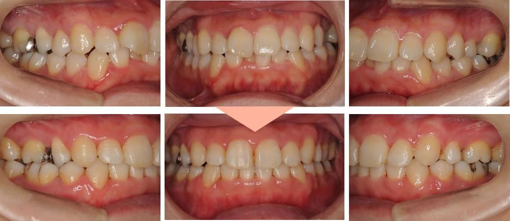 前歯の矯正治療ビフォーアフター