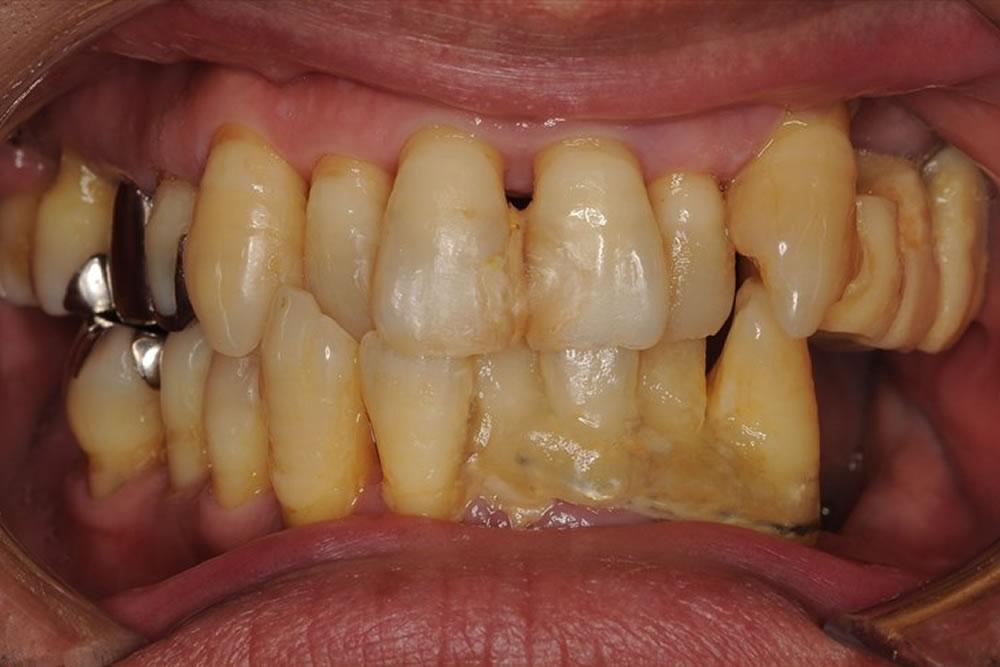 重度歯周病に矯正治療を行い歯を保存した症例