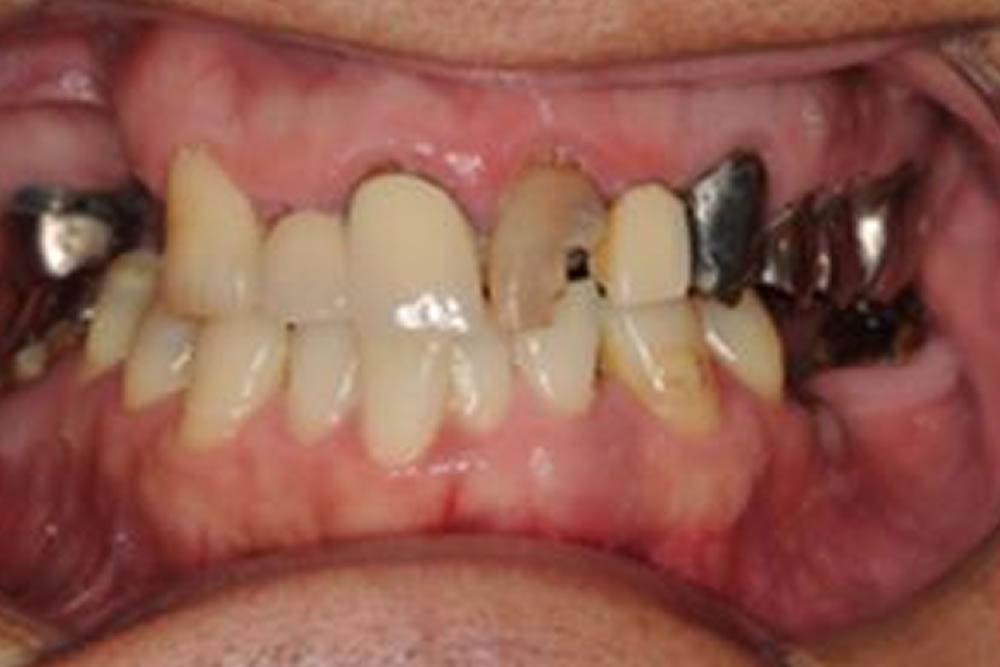下の前歯の再生療法を行い10年問題ない症例
