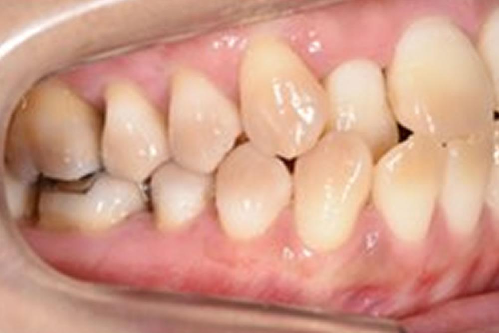 右上のグラグラな歯を保存できた症例