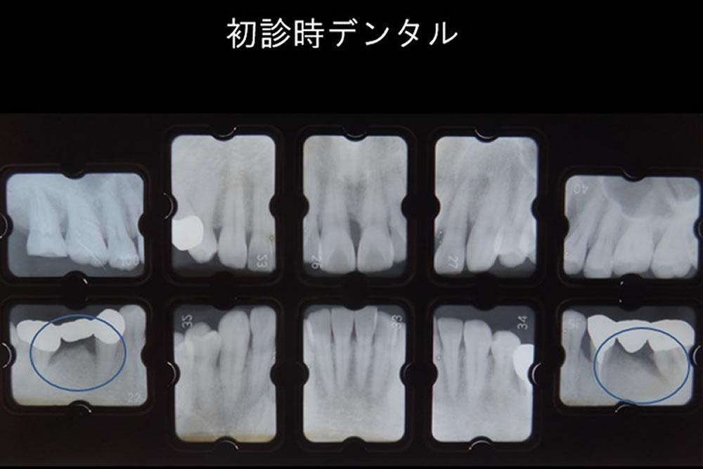 再生療法とインプラントにより歯を保存した症例