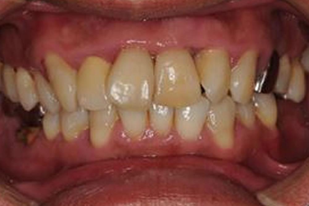 重症の歯周病をマイクロぺリオで救った症例