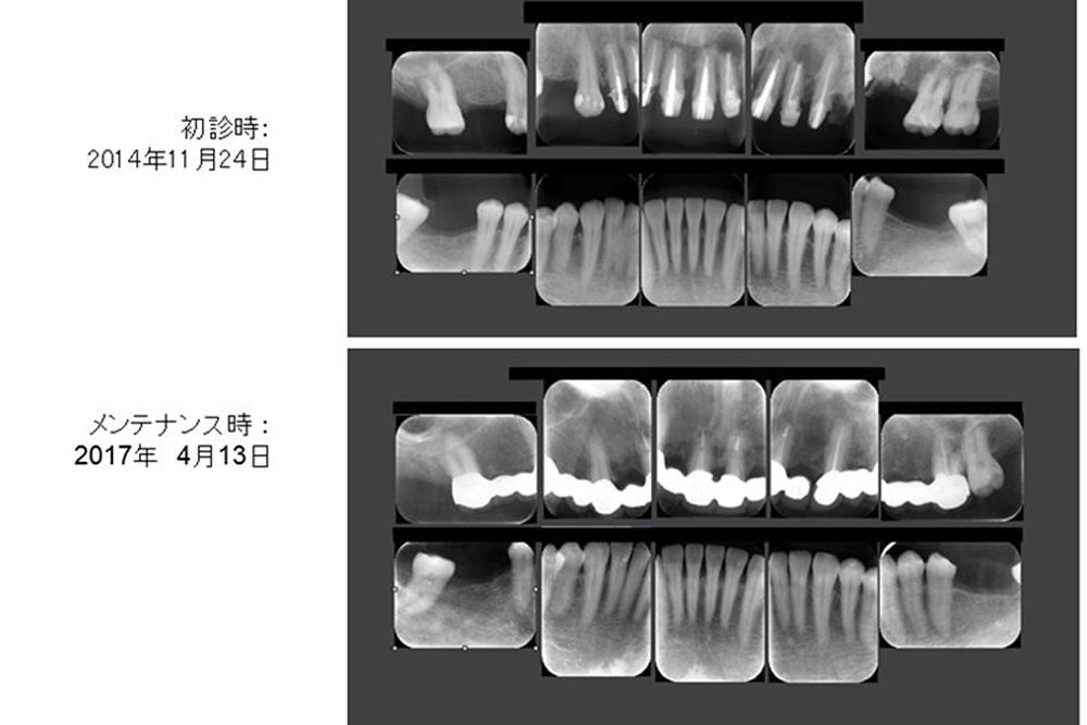 前歯の再生療法と精密根管治療で歯を保存した症例