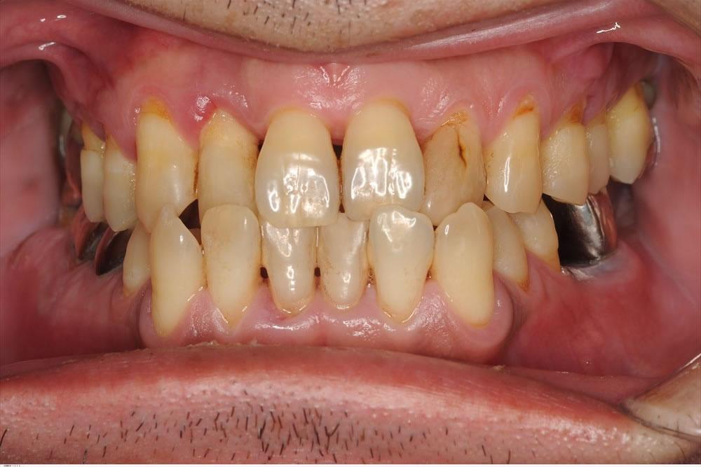 外科処置をせず重度歯周病が改善できている症例