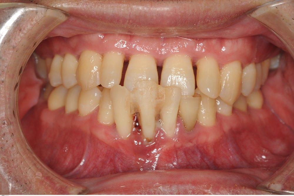 重症の歯周病(stage4)の歯周病を低侵襲で治療した症例