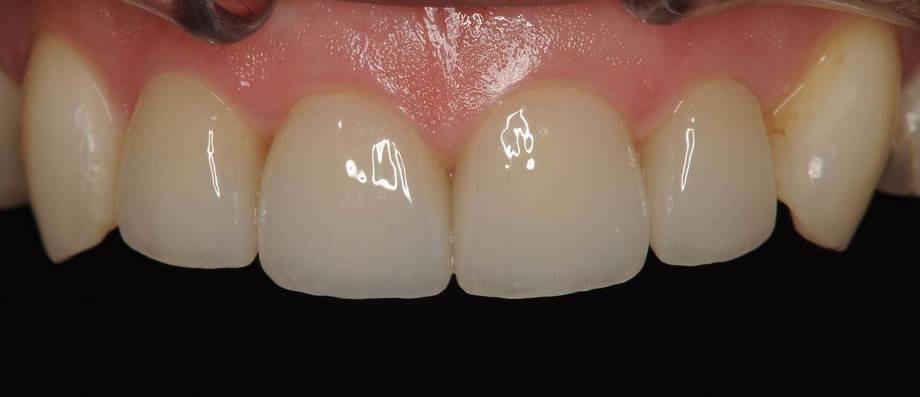 BiVi歯科式精密審美歯科