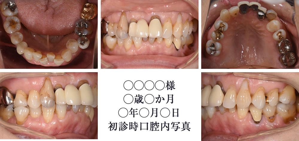 現在の歯並びのお写真