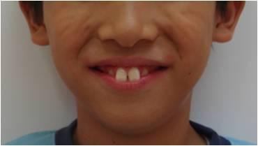 出っ歯の矯正治療前