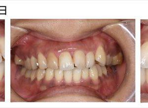 前歯の歯周病を手術しないで治した症例