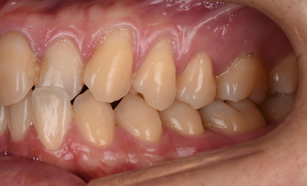 から 見える 歯茎 歯 が 歯茎に隠れてる虫歯でインプラントかブリッジを勧められています