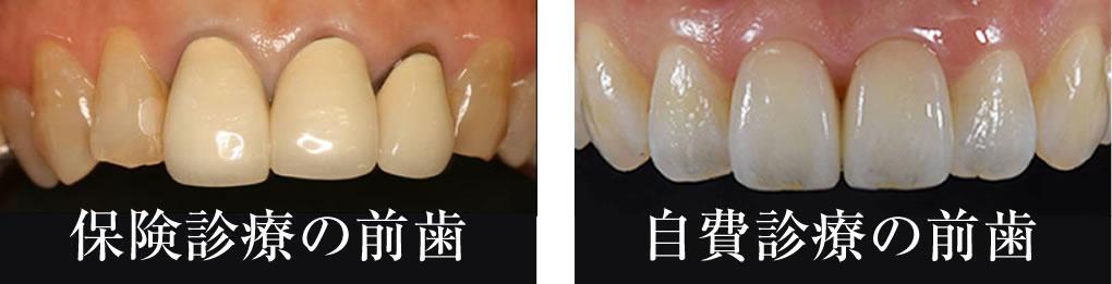 歯科における保険治療と自由診療
