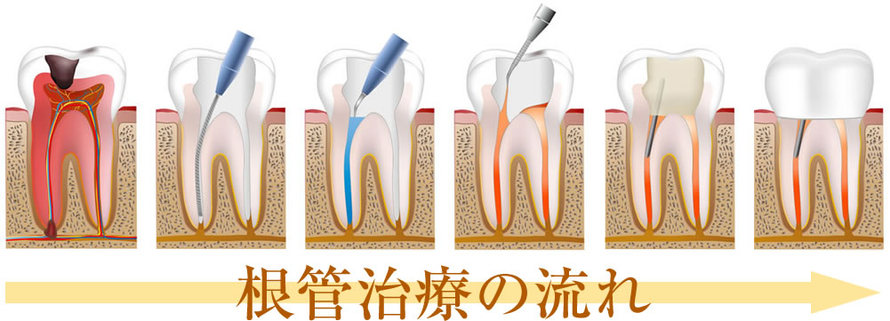 重度虫歯治療の保険治療と自費治療の違い