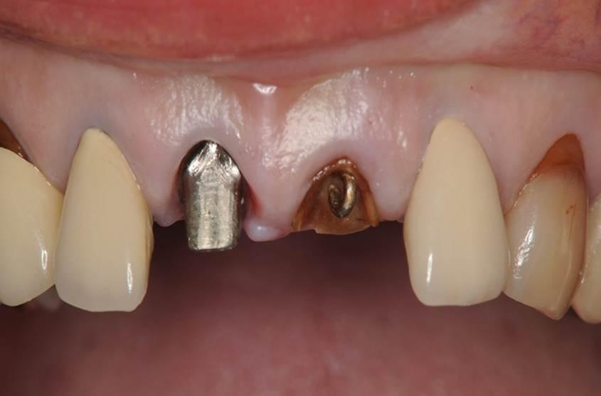 前歯のインプラント治療前