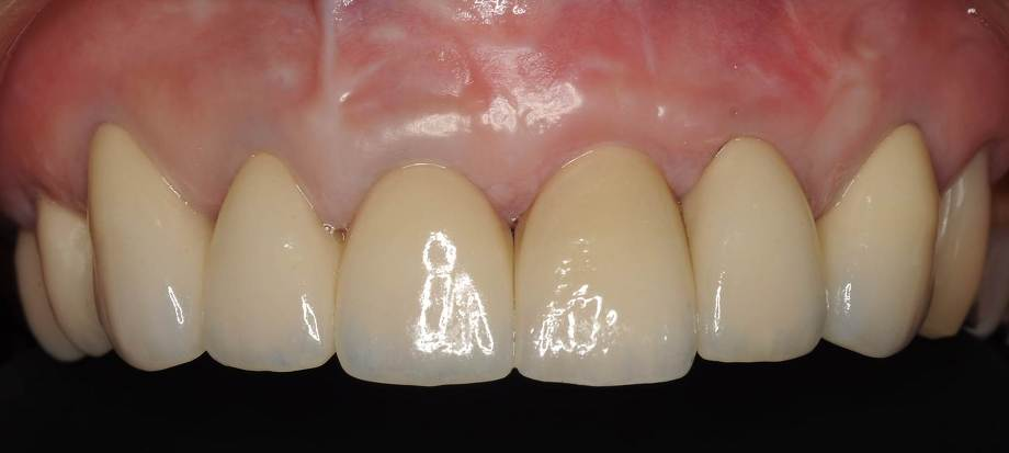 前歯のインプラント治療後