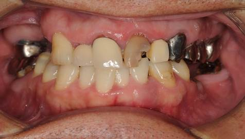 奥歯のインプラント治療前