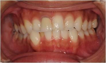 歯列矯正治療前