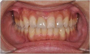 歯列矯正治療後