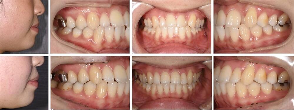 叢生(デコボコ歯列)の大人の矯正治療例4