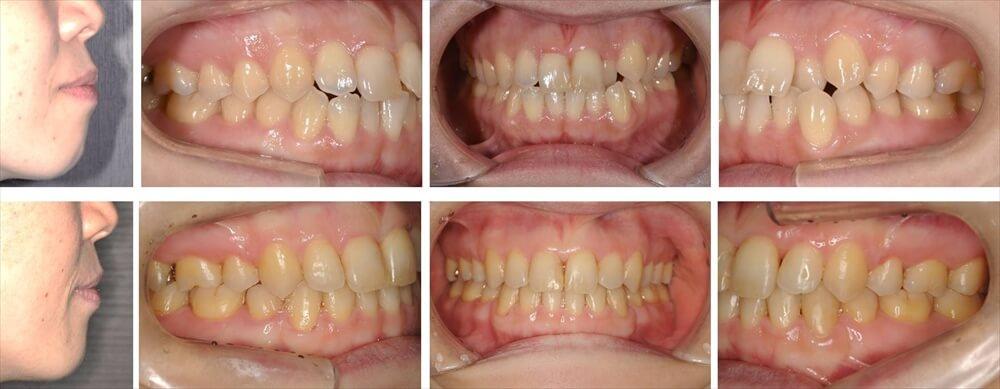 叢生(デコボコ歯列)の大人の矯正治療例