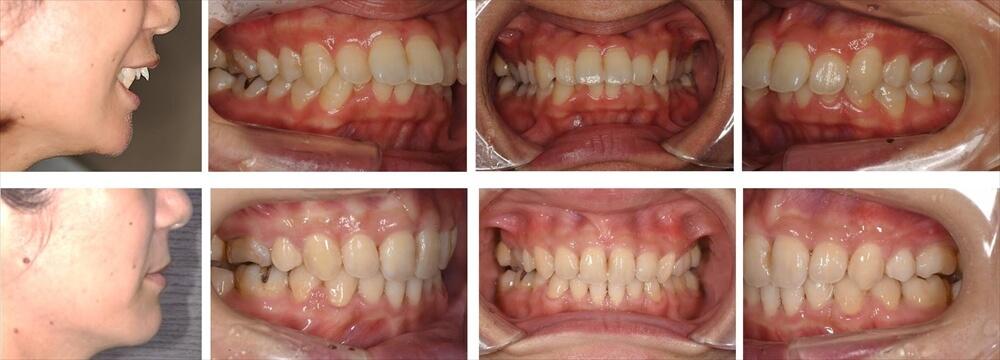上顎前突(出っ歯)の大人の矯正治療例1
