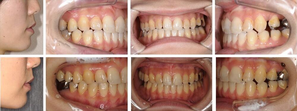 上下顎前突(出っ歯)の大人の矯正治療例