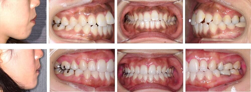 叢生(デコボコ歯列)の大人の矯正治療例3