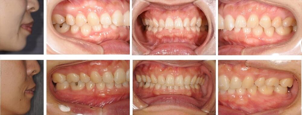 過蓋咬合(咬み合わせが深い)の大人の矯正治療例1