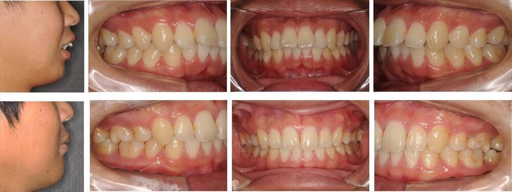 上下顎前突(出っ歯)の大人の矯正治療例2