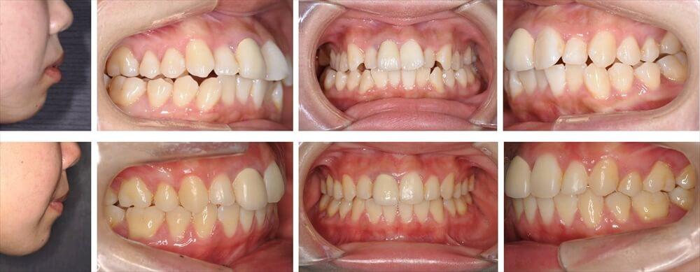 開咬歯列の大人の矯正治療例1