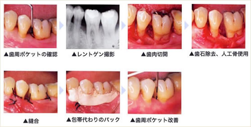 外科処置や歯周再生療法