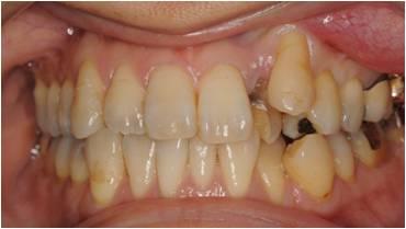 乱ぐい歯の矯正治療前