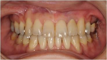 乱ぐい歯の矯正治療後