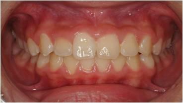 乱ぐい歯の小児矯正治療後
