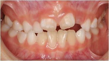 乱ぐい歯の小児矯正治療前