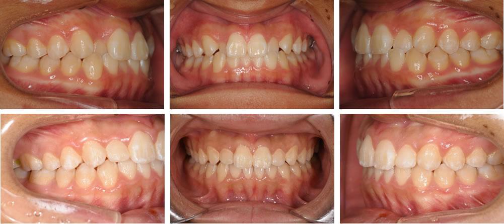 八重歯・叢生の矯正治療例(18歳男性 治療期間1年)